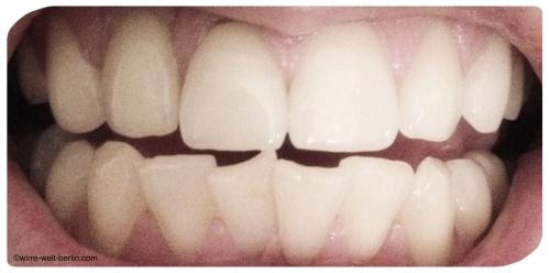 Zähne 1